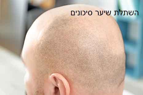 השתלת שיער סיכונים