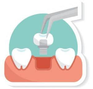ציפוי שיניים ברומניה