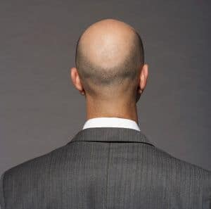 השתלת שיער באיסטנבול המלצות